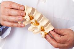 artrose osteoporose