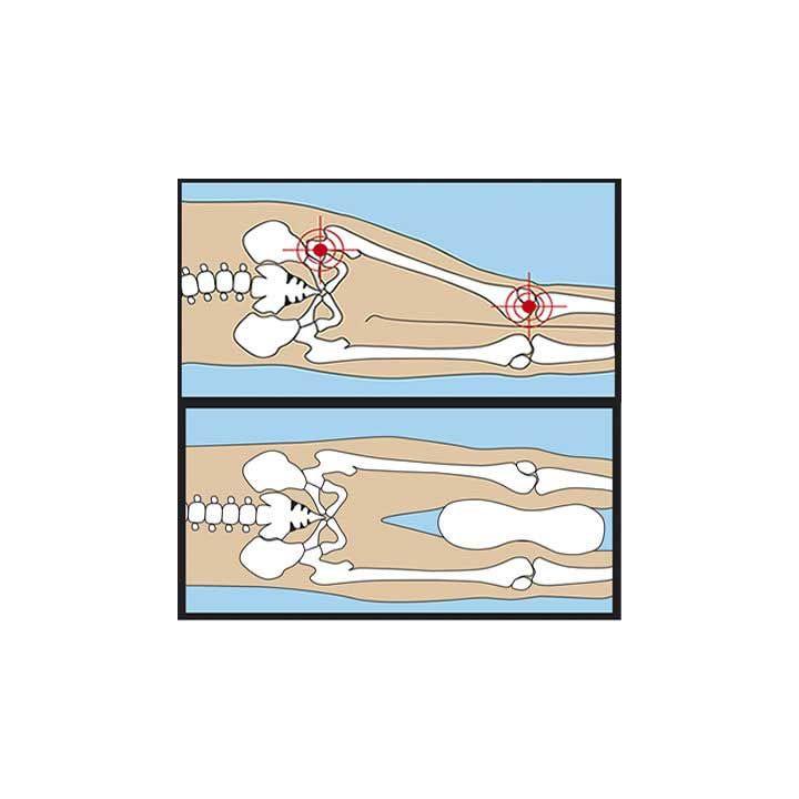 werking van een beenkussen tussen de knieën