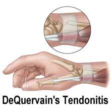 quervain tendonitis in beeld